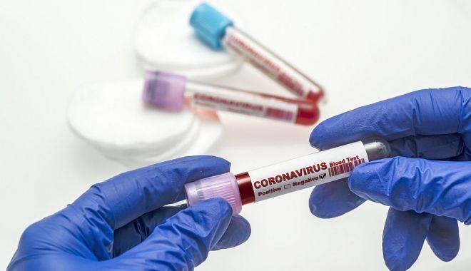 CORONAVIRUS la Constanţa. Nou record de îmbolnăviri: 97 de persoane depistate pozivite, în 24 de ore - 1-1602846600.jpg