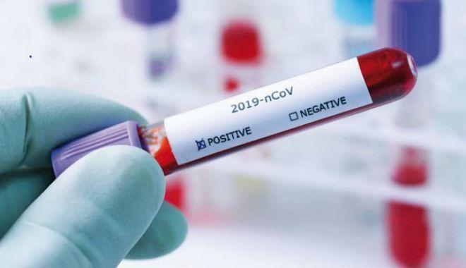 Numărul cazurilor noi de infectare cu COVID se menține peste 4000 - 12pozatestcovidjos-1615030252.jpg