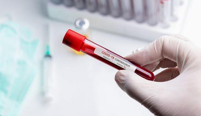 Foto: Un angajat al RAEDPP Constanța, confirmat cu coronavirus