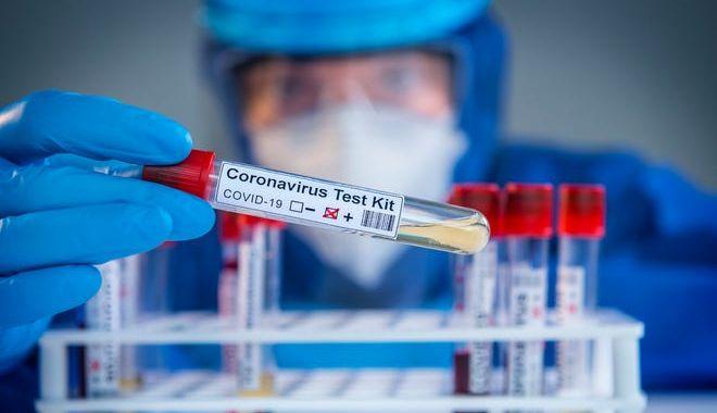 COVID-19. A fost trecut pragul psihologic de 100.000 de infectări, la nivel naţional şi 2000 la nivel judeţean - covid-1599818815.jpg