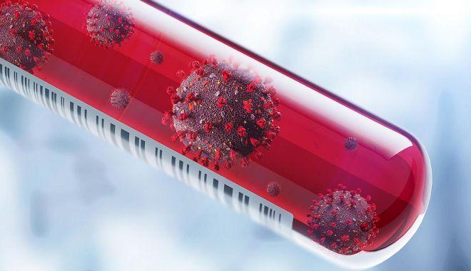 Foto: COVID-19. Mai puține teste, mai puține cazuri de infectări cu coronavirus