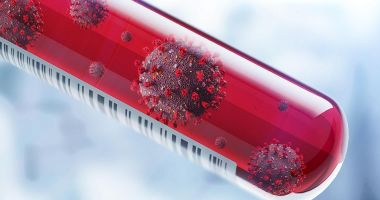 COVID-19. Mai puține teste, mai puține cazuri de infectări cu coronavirus